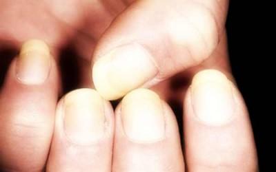 unghie gialle ingiallite 400x250 1 - Unghie gialle: i migliori rimedi naturali