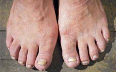 micosi ai piedi 400x250 1 - Micosi ai piedi: come prevenirla e rimedi naturali